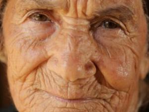 what-causes-wrinkles-1_TOP